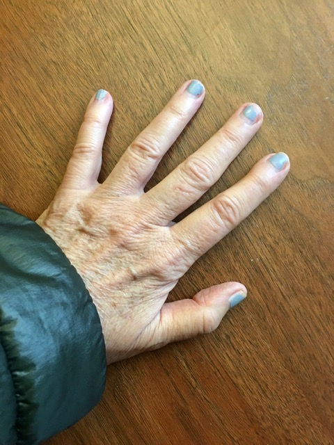 In need of a manicure